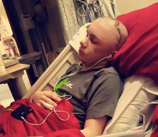 Duct Tape Viral Video Challenge Nearly Kills Teenager